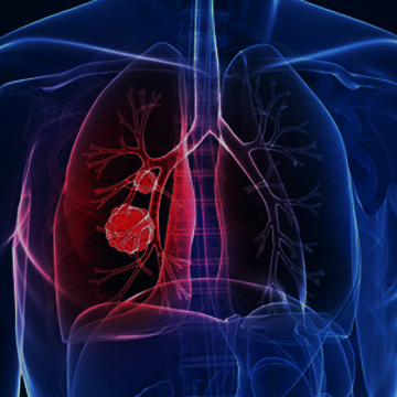 Légúti rendszer - Tüdő